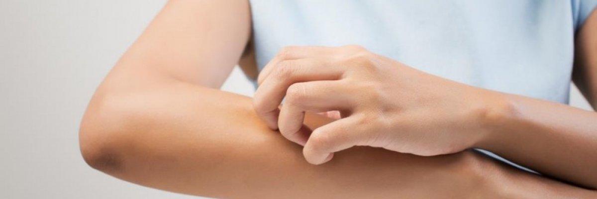 Bőrviszketés okai: betegségeket is jelezhet!