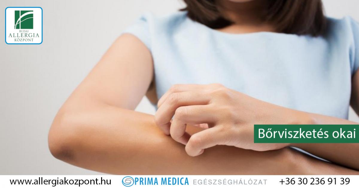 súlycsökkenést okozó asztma