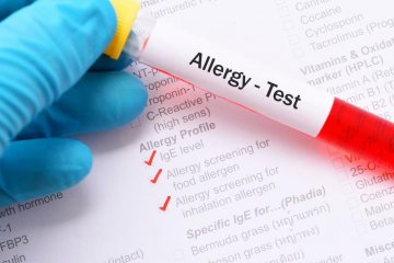 Keresztallergia kivizsgálás multiplex allergia teszttel