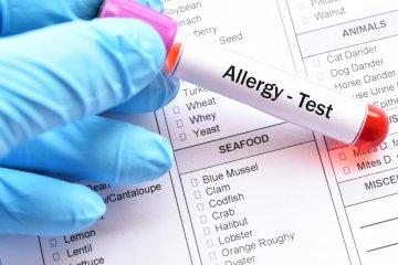 Allergia vizsgálat vérből – melyik teszt, mit mutat?