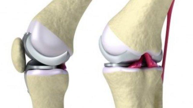 Implantátumra vár? Műtét előtt végeztessen fémallergia vizsgálatot!