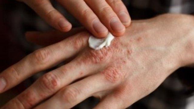 Nikkel allergia miatt is lehet foltokban vörös, száraz a bőre!