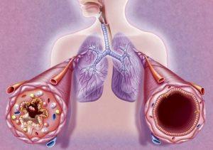 Allergiás asztma