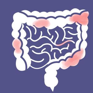 a crohn-betegség nem fogyhat le