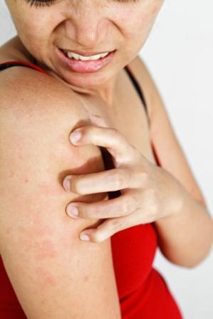 A pollenek miatt erősödnek az ekcémás tünetek